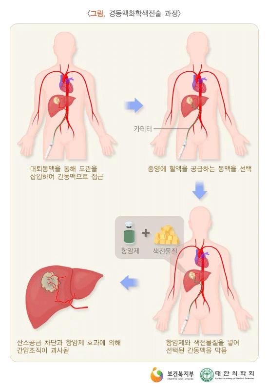경동맥화학색전술.png